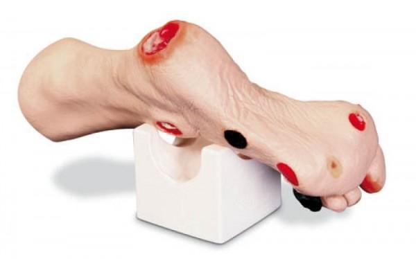 Picior cu rani. Wilma