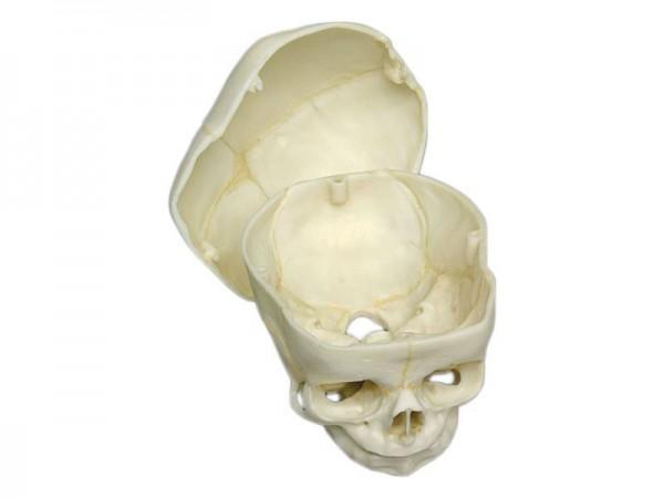 Craniu uman fetal de 40 săptămâni cu reducerea oaselor superioare